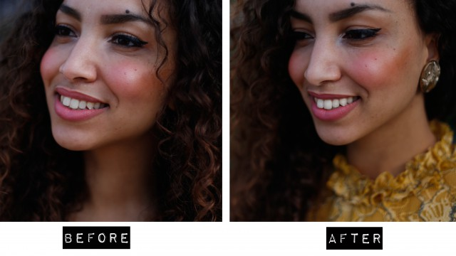foto before after smilelab